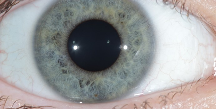 Iridology/Iris diagnosis